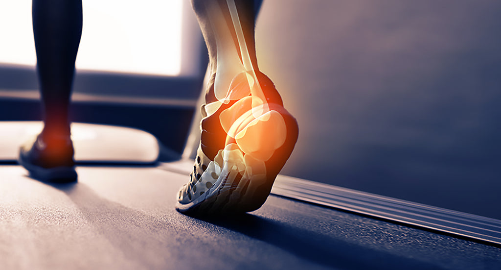 Pain in your heels? It could be Plantar Fasciitis.