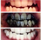Organic Activated Charcoal Teeth Whitener Powder