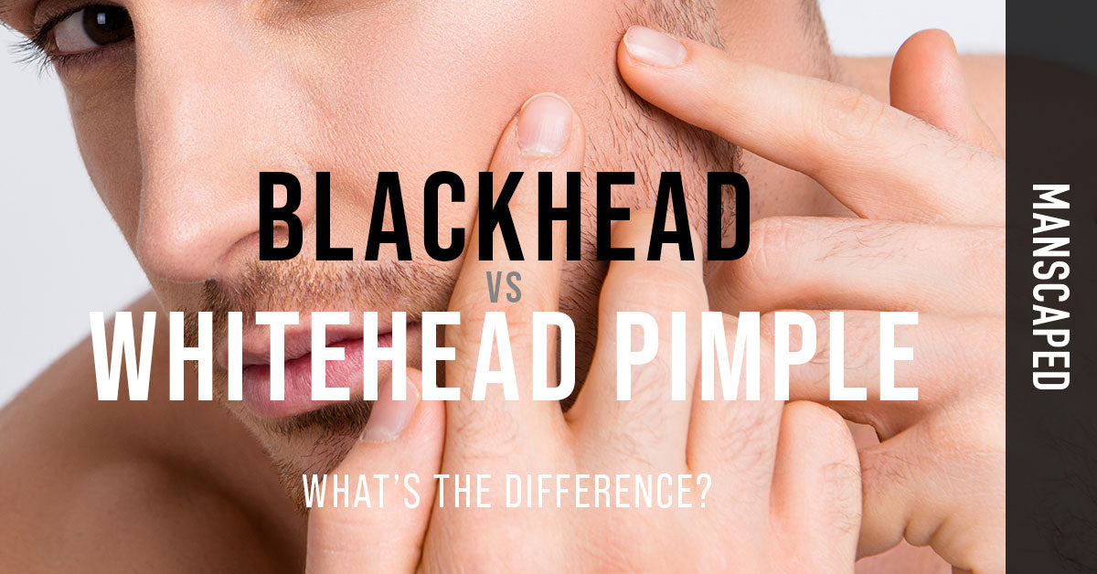 Blackhead vs Whitehead Pimple: What's the Difference?