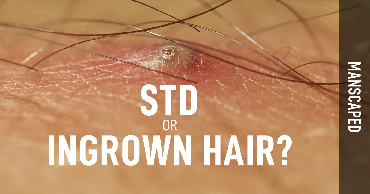 STD or Ingrown Hair?