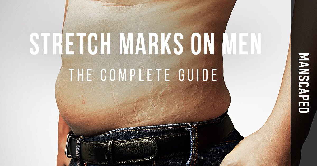 Stretch Marks on Men: The Complete Guide