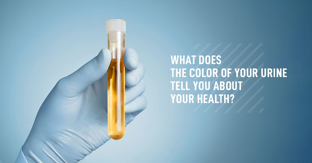 What Does the Color of Your Urine Tell You about Your Health?