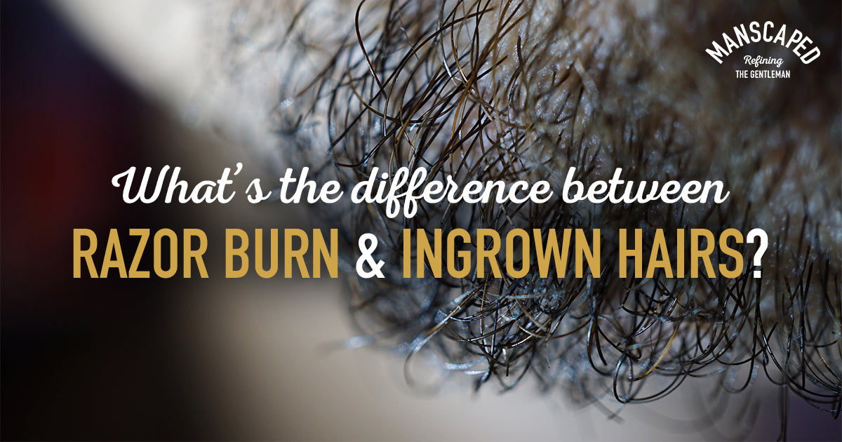 What's the Difference Between Razor Burn and Ingrown Hairs?