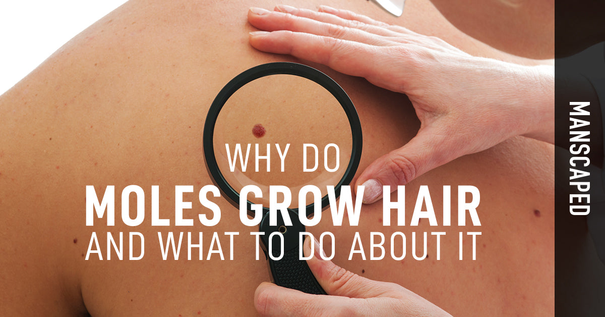 Why Do Moles Grow Hair and What to Do About It