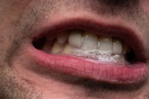 Man WIth Saliva Coming Out Of His Mouth