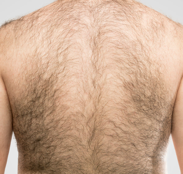 Absolute Best Way To Remove Back Hair For Men Manscaped Com