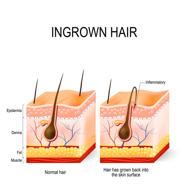 std or ingrown hair