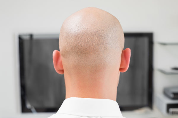 best hairstyles and haircuts for balding men
