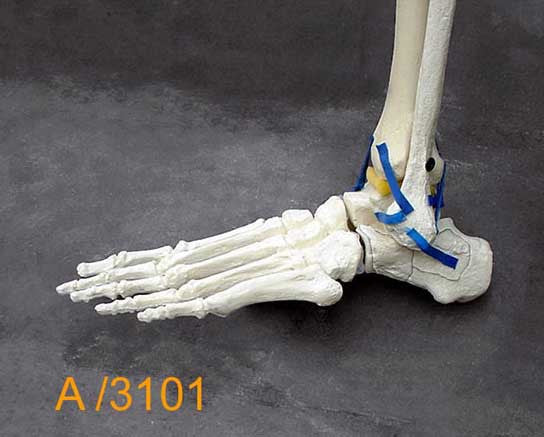 Ankle Large Left – Distal tibia and fibula,Talar fracture A3101