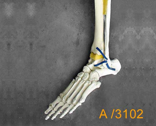 Ankle Large Left Distal Tib/Fib with NO fractures A3102