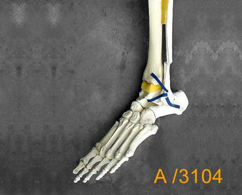 Ankle Large Left – Distal tibia and fibula., Trimalleolar fracture A3104