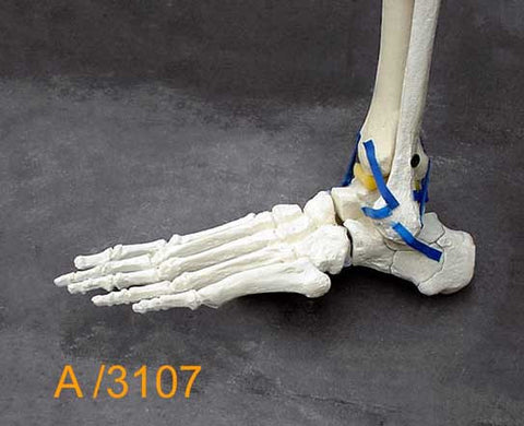 Ankle Large Left – Distal tibia and fibula. A3107