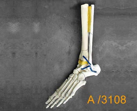 Ankle Large Left – Distal tibial pilon fracture and Oblique fracture of the fibula. A3108