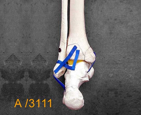 Ankle Large Left – Distal tibia and fibula with Pilon fracture. A3111