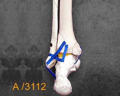Ankle Large Left – Distal tibia and fibula with multiple fractures A3112
