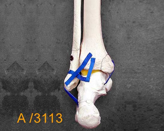 Ankle Large Left – Distal tibia and fibula. with multible fractures A3113