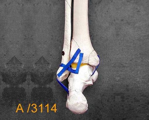 Ankle Large Left – Distal tibia and fibula with type B fracture. A3114