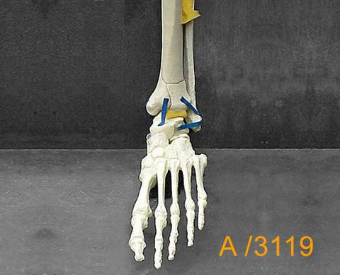 Ankle Large Left and forefoot. A3119