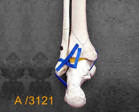 Ankle Large Left – Full length tibia and fibula, Weber B fracture  A3121