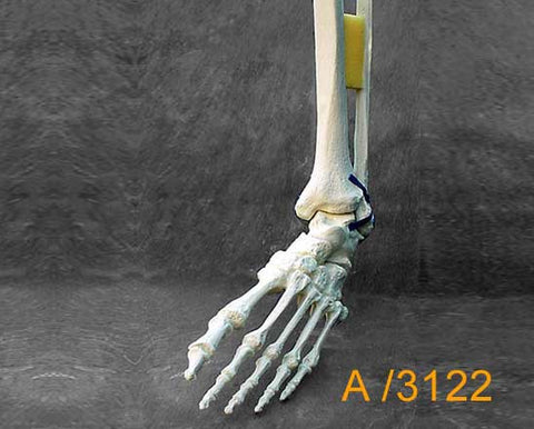 Ankle Large Left – Distal tibia and fibula with varus/sub talr deformity A3122