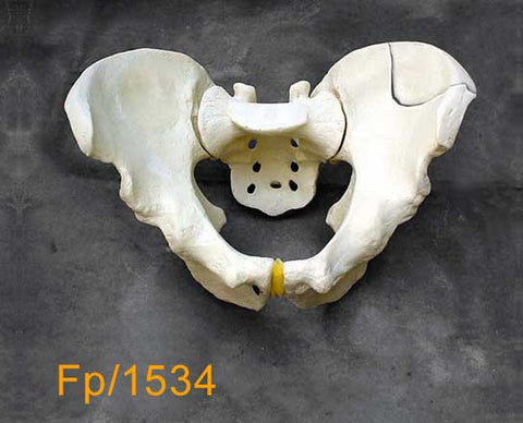 Full Pelvis - Large with left posterior fracture FP1534