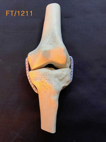 Knee Demo Replacement (Knee)	FT/1211