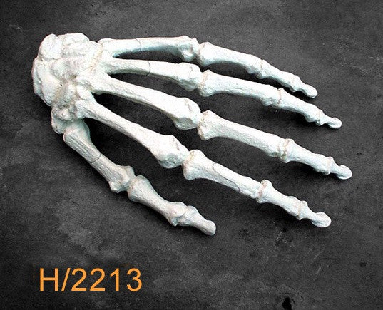 Hand Large Left with multible fractures H2213