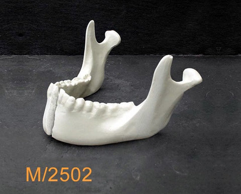 Mandible– With parasymphseal fracture M2502