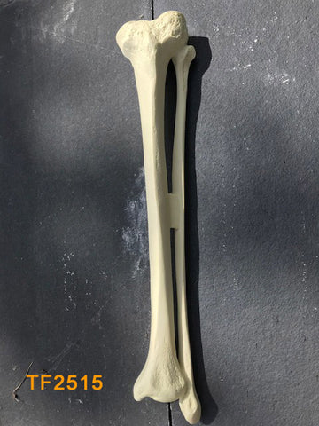 Tibia & Fibula Large Left canal 12mm TF2515