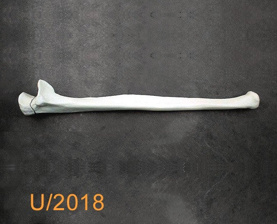 Ulna Large Left with transverse fracture U2018