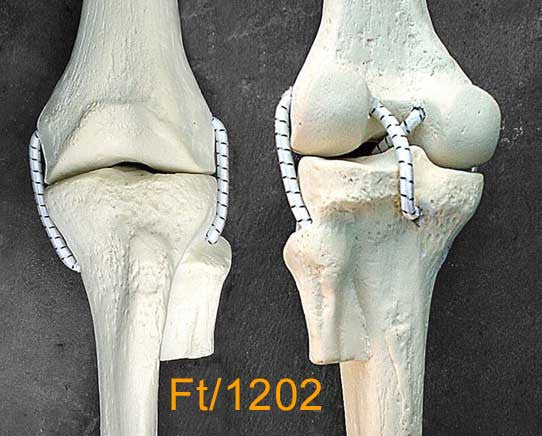 Knee Medium Left – Full length