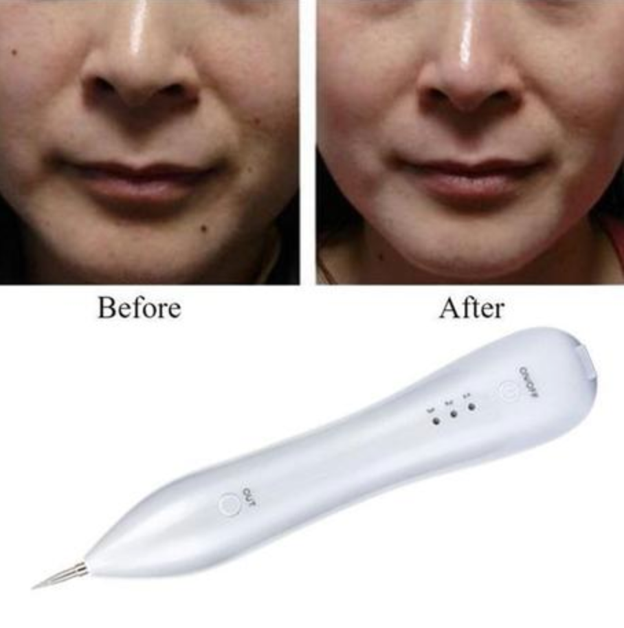 RemoveIt Pro® Skin Tag/Mole Remover - SAVE 60% TODAY