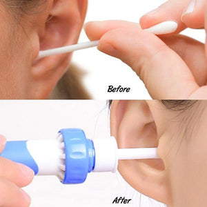 Ear Wax Remover Vacuum Cleaner - ZUNARIS