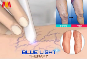 Medical Blue Light Therapy Laser Treatment Pen - ZUNARIS