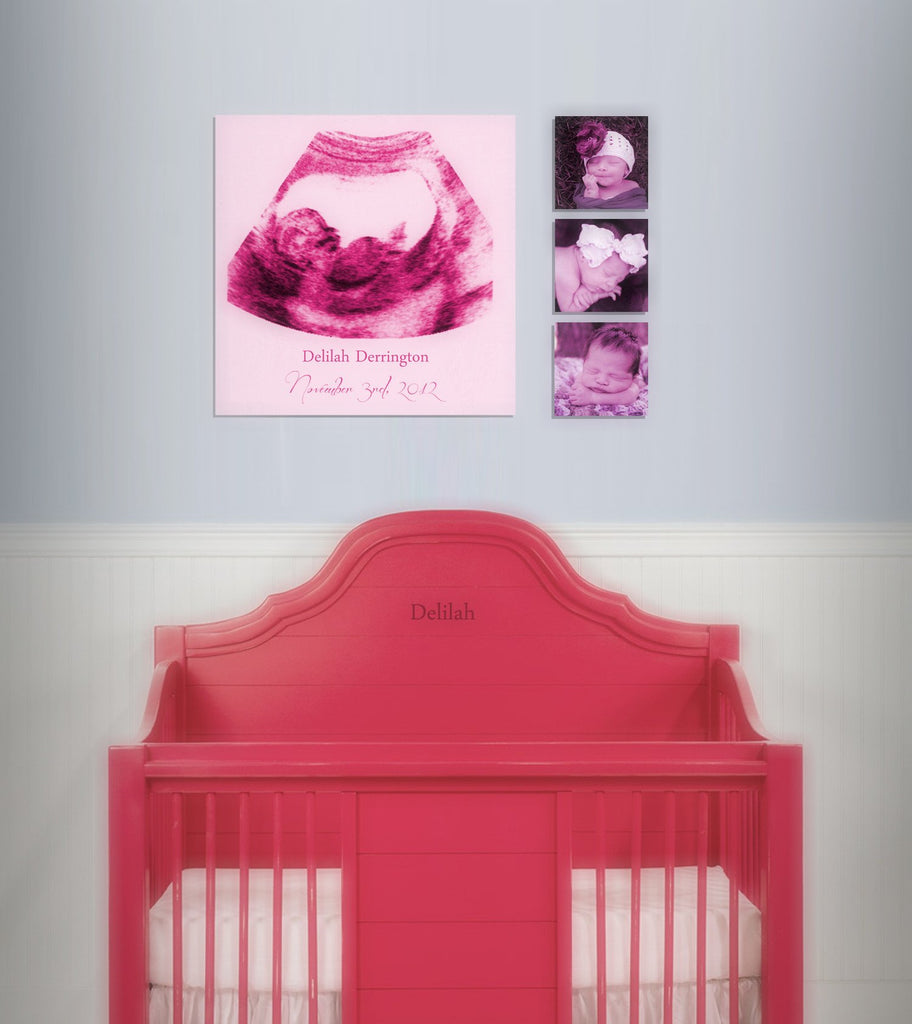 Custom Ultrasound Canvas - Canvas Vows