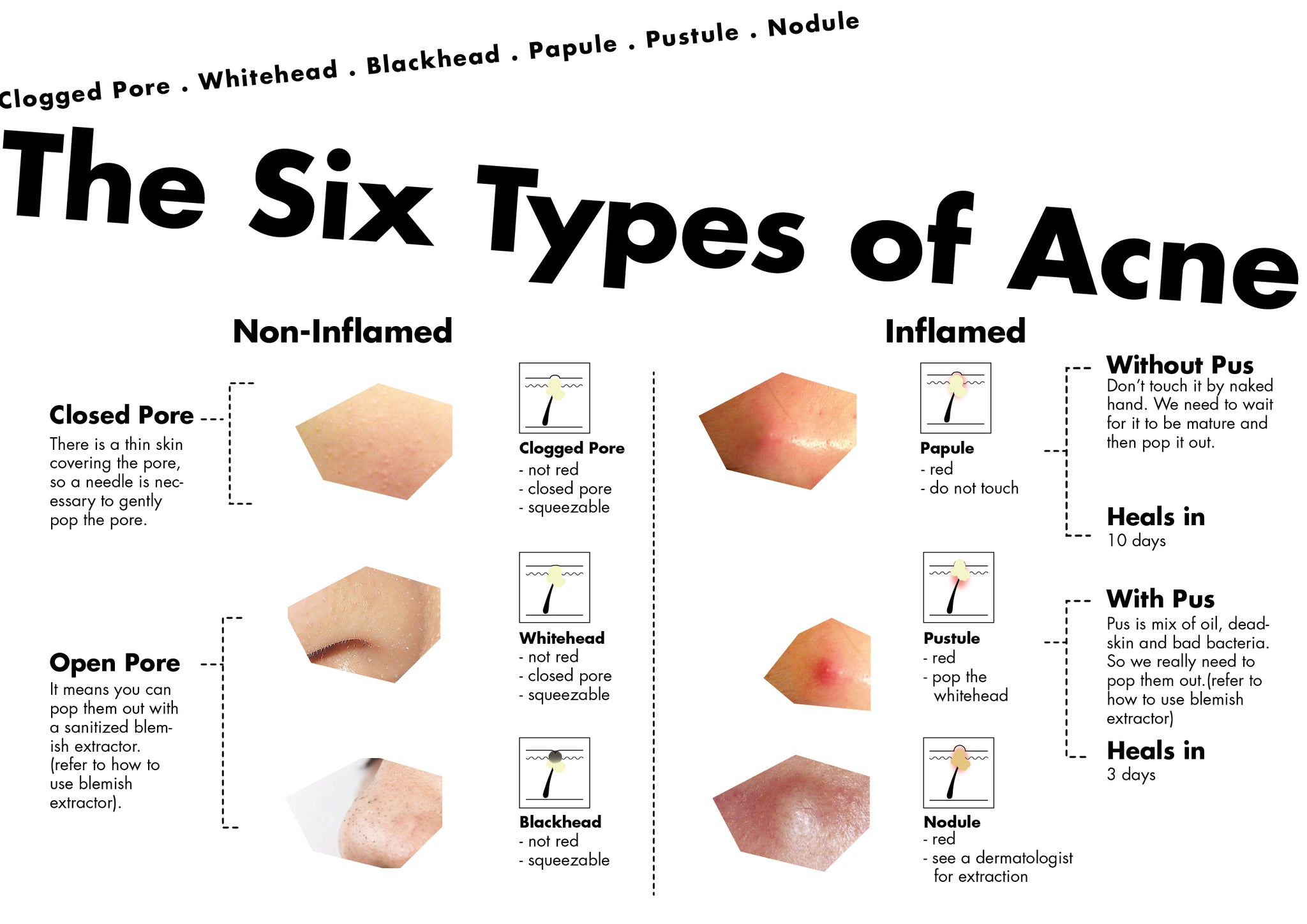The six types of acne infographic