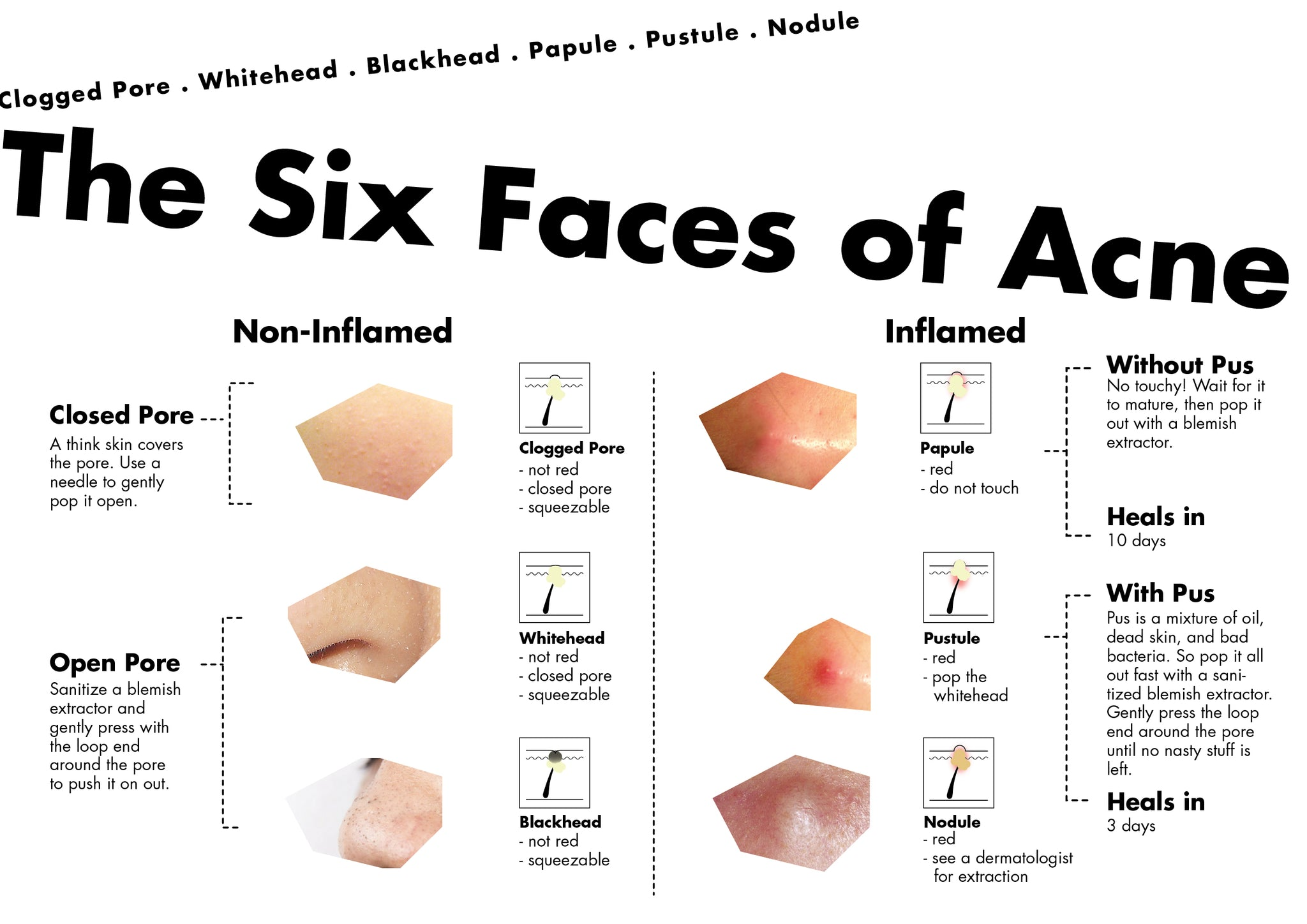What are the six main types of acne?