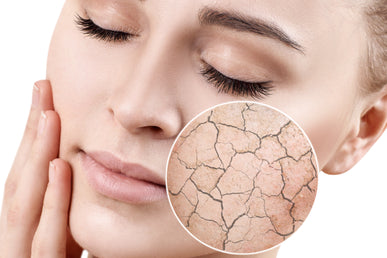 How to Cure Dry Skin on Face Overnight?