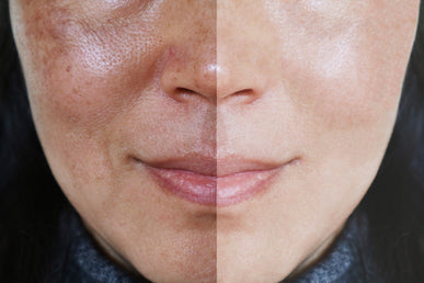 How Can You Reduce Enlarged Pores?
