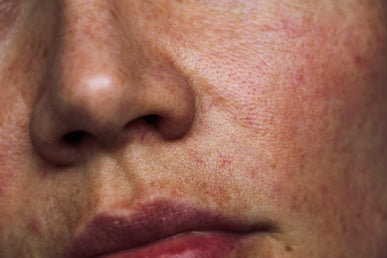 How to Tackle Hyperpigmentation Around the Mouth?