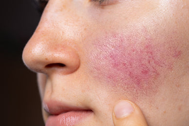 What Skincare Ingredients To Avoid If You Have Rosacea?
