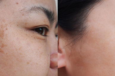 How to Get Rid of Dark Spots on Face?