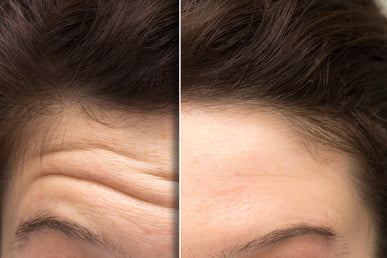 How to Reduce Wrinkles on Forehead?