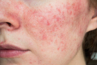 What Does Azelaic Acid Do for Rosacea?