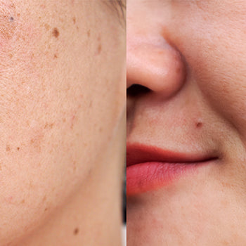 What Skin Care Tips Can Help You Manage Dark Spots