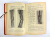 Antique 1921 Medical Book on External Pathology by P. Mathieu, 196 Drawings