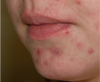 What You Should Know About Acne