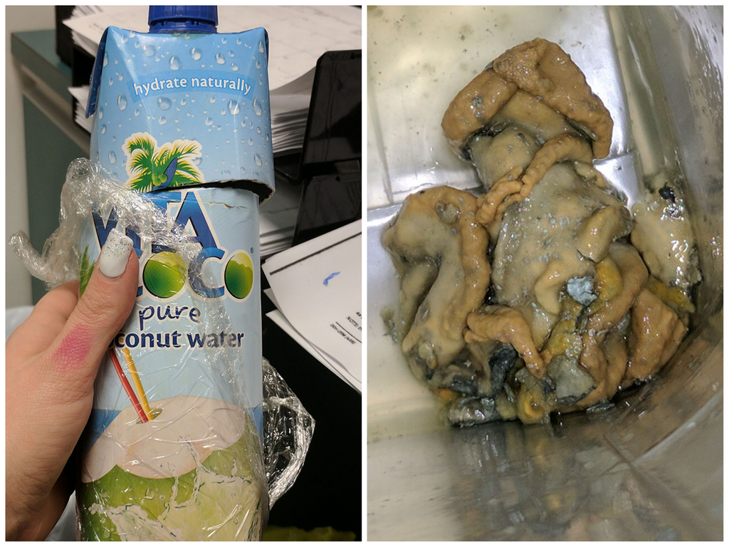 WOMAN SAYS SQUID-LIKE SUBSTANCE WAS FLOATING IN BOTTLE OF COCONUT WATER