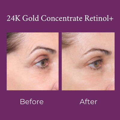 24K Gold Concentrate Retinol+
