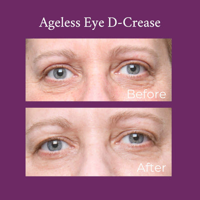 Ageless Eye D-Crease
